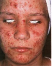 acne conglobata.jpg